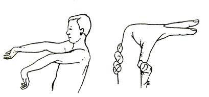 Лікування дисплазії сполучної тканини