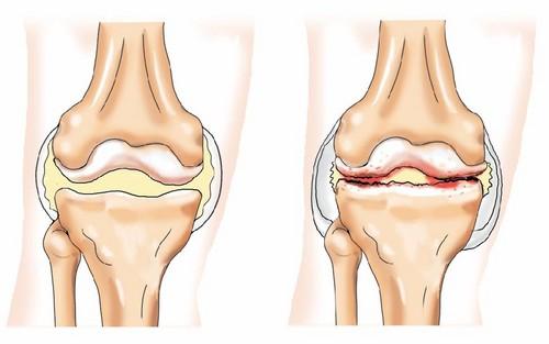Артроз колінного суглоба лікування