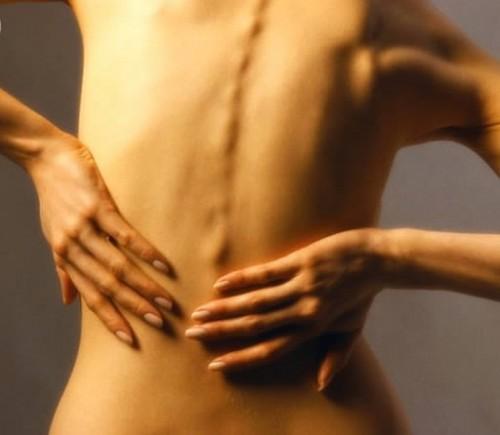 Лечение миалгии и миозита