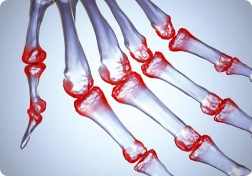 Ревматоїдний артрит лікування
